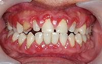 dantenu uzdegimas